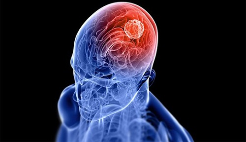 Bệnh ung thư phổi giai đoạn cuối di căn não