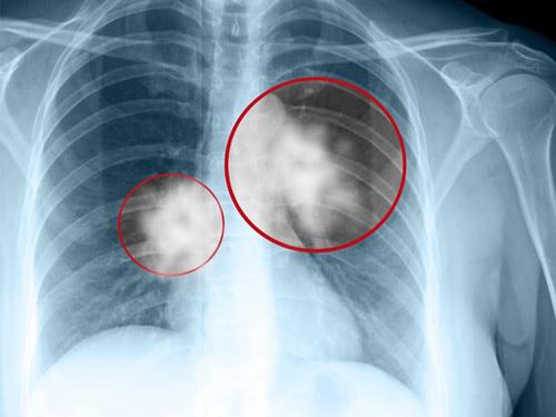 Bệnh ung thư phổi giai đoạn cuối di căn xương.