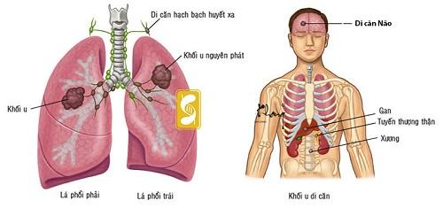 Bệnh ung thư phổi giai đoạn 4 nguy hiểm trực tiếp đến tính mạng