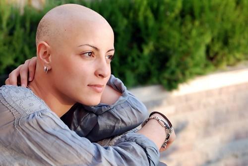Rụng tóc là biến chứng vì hóa trị ung thư thường gặp