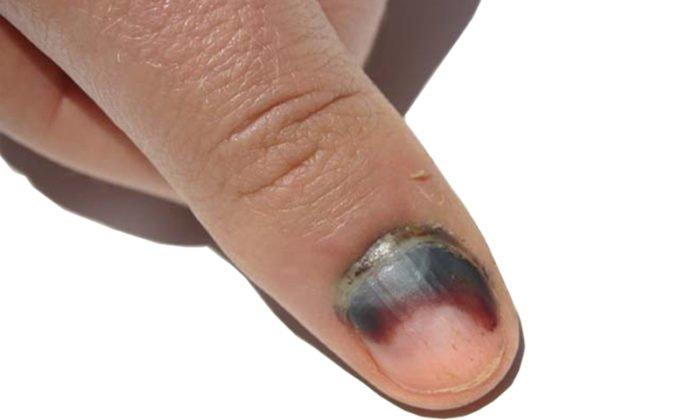Móng bị thâm đen cũng là một trong những dấu hiệu biểu hiện của bệnh ung thư da