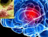Biểu hiện ung thư di căn não. Xem hình ảnh ung thư di căn não