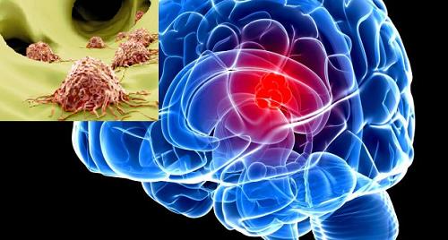 Biểu hiện ung thư di căn não cho biết giai đoạn của bệnh
