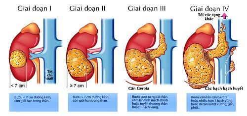 Các giai đoạn của ung thư gan