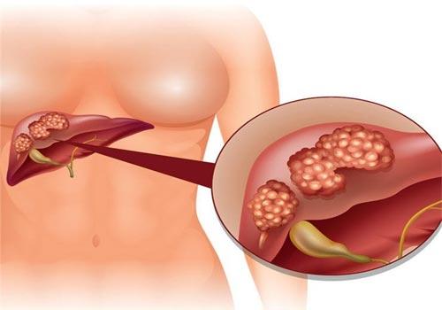Cách chữa ung thư gan bằng lá đu đủ có mang lại hiệu quả không