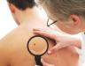 Cách điều trị ung thư hắc tố da và phương pháp chẩn đoán bệnh từ sớm