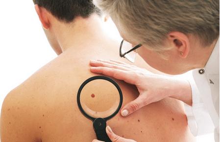 Chẩn đoán ung thư hắc tố để áp dụng cách điều trị phù hợp