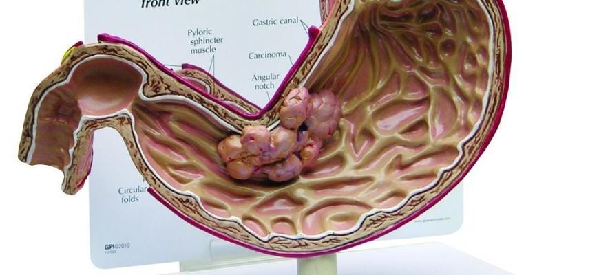 Hình ảnh mặt cắt của dạ dày bị ung thư