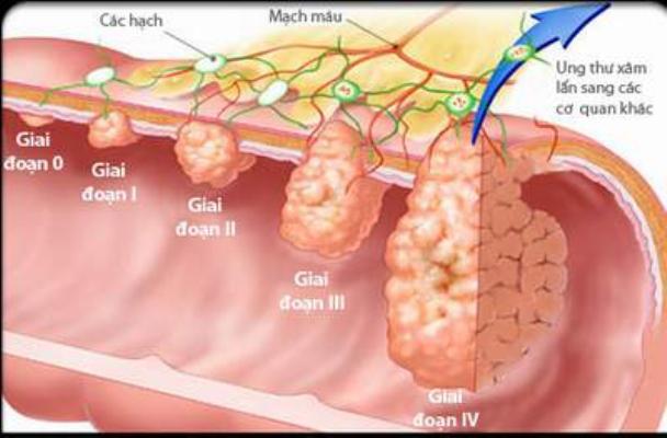 Hình ảnh mặt cắt của ung thư dạ dày qua các giai đoạn