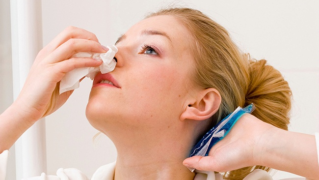 Chảy máu mũi có thể là biểu hiện của ung thư vòm họng giai đoạn 2