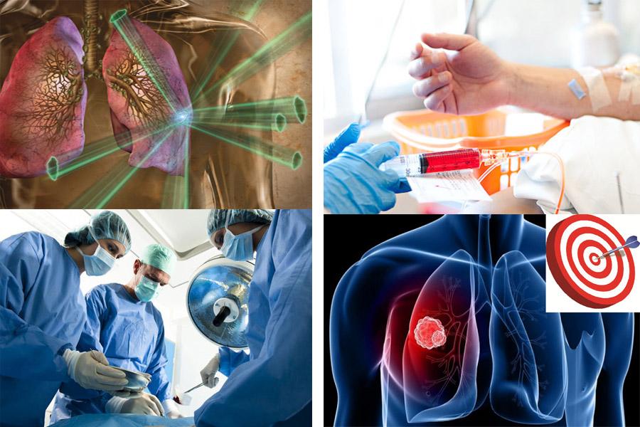 chi phí điều trị ung thư phổi