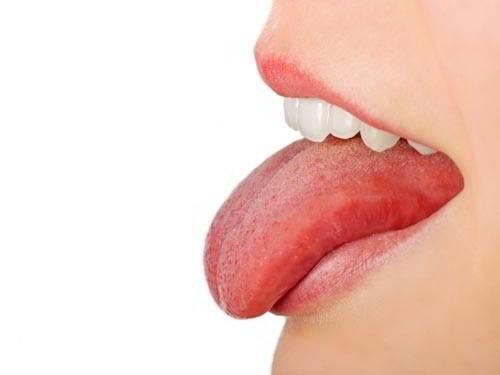 Ung thư lưỡi là căn bệnh nguy hiểm
