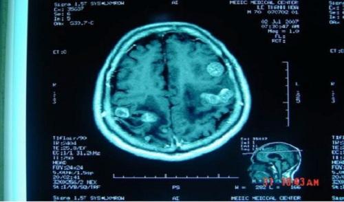 Hình ảnh ung thư di căn não