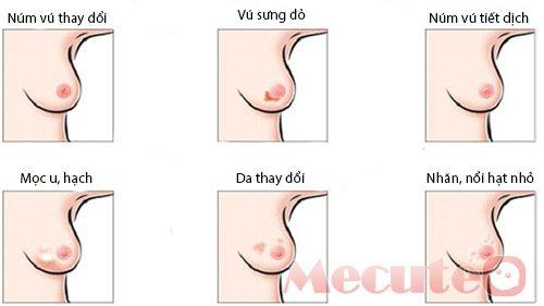 Cục nhỏ ở ngực một trong 9 dấu hiệu cảnh báo bệnh ung thư