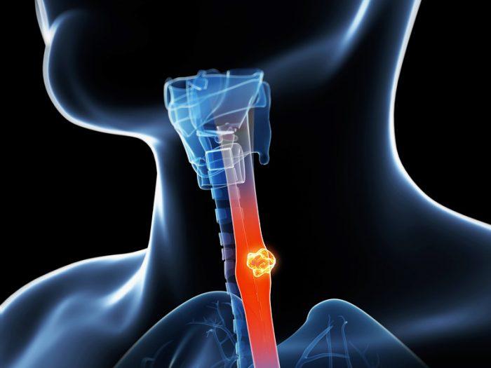 Dấu hiệu của ung thư thực quản là nuốt nghẹn, nôn, trớ...