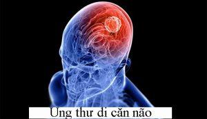 Dấu hiệu ung thư di căn não