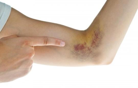 Ung thư máu giai đoạn đầu, bệnh nhân dễ bị bầm tím ở nhiều nơi trên cơ thể.