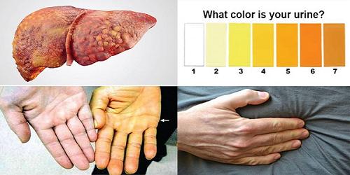 Đau ổ bụng và vàng da là 2 biểu hiện cơ bản