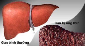 Ung thư gan giai đoạn cuối là căn bệnh nguy hiểm