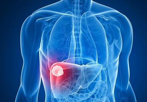 Điều trị ung thư gan bằng thuốc Nam. Chế độ ăn cho bệnh nhân ung thư gan