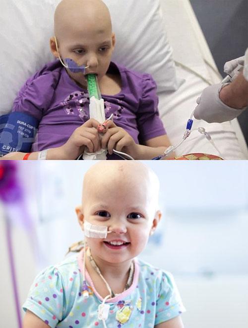 Hóa trị là cách điều trị ung thư máu ở trẻ em phổ biến.