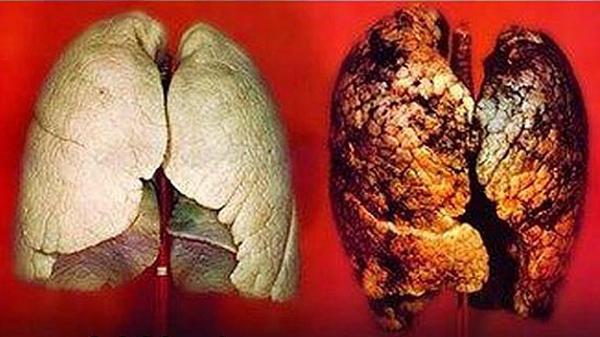 Điều trị ung thư phổi bằng xạ trị là câu hỏi của nhiều độc giả gửi về cho chúng tôi