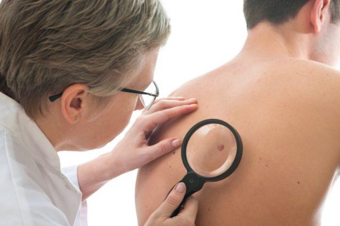 Điều trị ung thư tế bào hắc tố và dấu hiệu ung thư tế bào