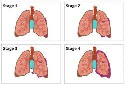 Các giai đoạn của ung thư phổi không tế bào nhỏ
