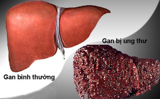 Sự khác nhau giữa gan bình thường và gan bị ung thư