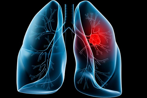 Hình ảnh lá phổi có tế bào ung thư