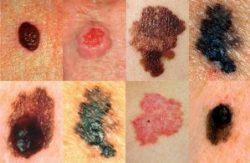 Ung thư da sống được bao lâu là vấn đề nhiều người quan tâm. Triệu chứng trên da của bệnh ung thư da