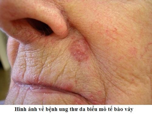 Hình ảnh về bệnh ung thư da biểu mô tế bào vảy