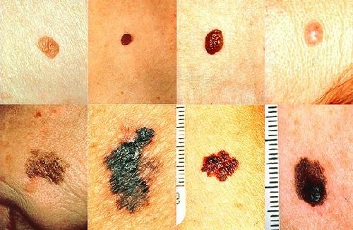 Những biểu hiện ung thư da thường gặp
