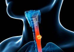 Tiên lượng ung thư thực quản dựa vào nhiều yếu tố