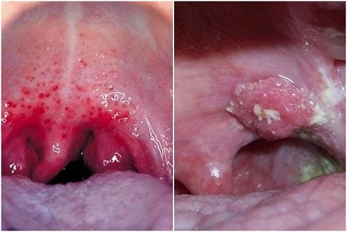 Hình ảnh ung thư vòm họng