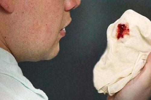 Ho ra máu là biểu hiện của ung thư phổi di căn hạch ở cổ