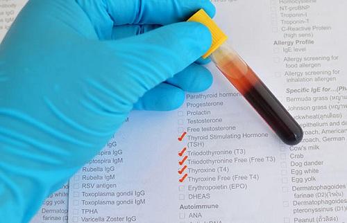 Kết quả xét nghiệm ung thư máu cho biết thể trạng của người bệnh