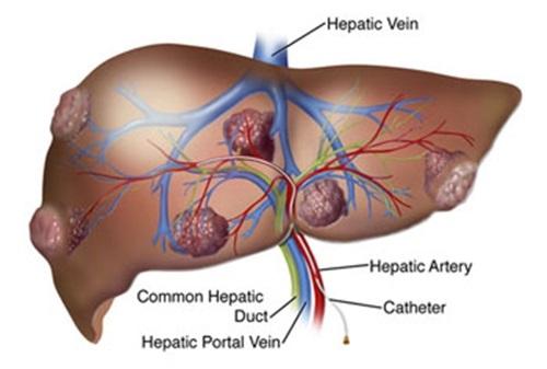 Khối u ở ung thư gan đa ổ xuất hiện ở nhiều vị trí