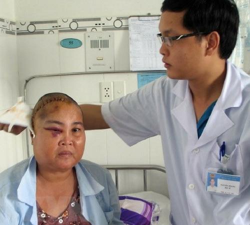 Ung thư não có thể chữa trị nếu phát hiện sớm
