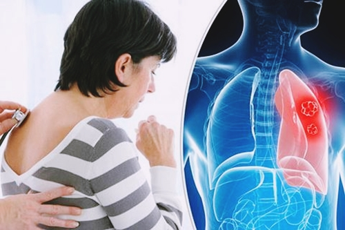 Người bệnh ung thư phổi nên ăn gì để điều trị đạt kết quả tốt nhất?