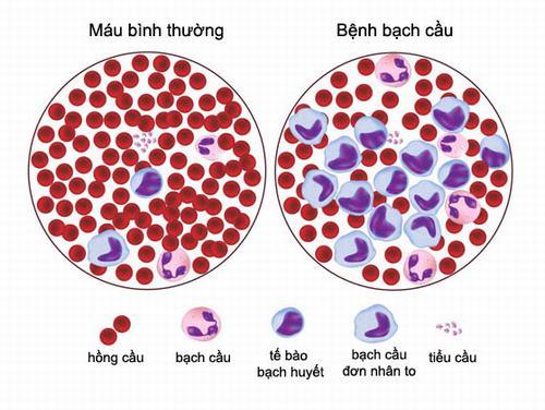 Ung thư máu là căn bệnh nguy hiểm