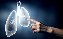 Nguyên nhân dẫn đến ung thư phổi do hút thuốc lá
