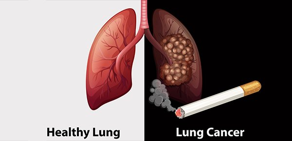 Hút thuốc lá - Một trong nguyên nhân dẫn đến ung thư phổi