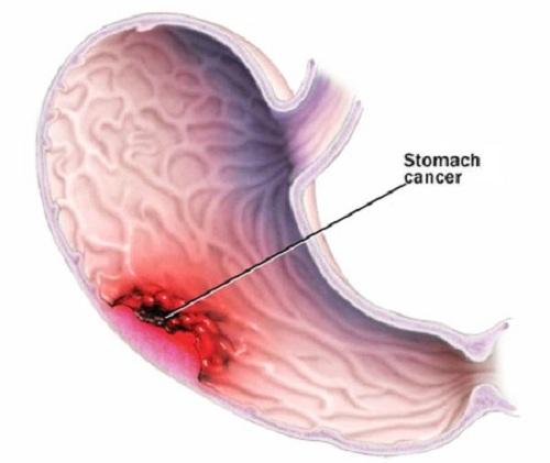 Nguyên nhân gây bệnh ung thư dạ dày
