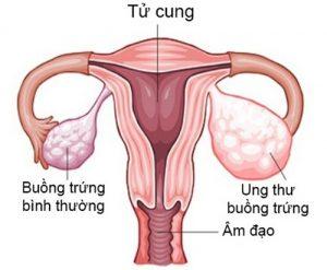 Ung thư buồng trứng là căn bệnh phổ biến ở phụ nữ