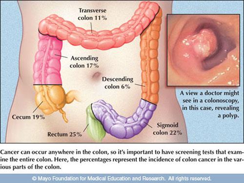 Dấu hiệu ung thư đại trực tràng những điểm cần lưu ý