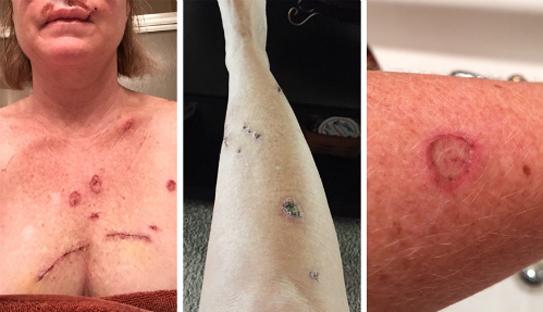 Những biểu hiện của bệnh ung thư da cực kỳ nguy hiểm