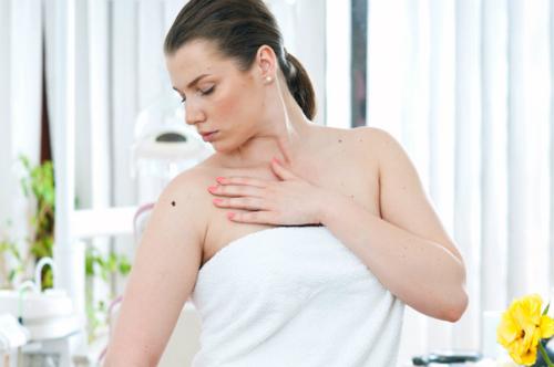 Nốt ruồi có gây ung thư không là mối quan tâm của nhiều phụ nữ