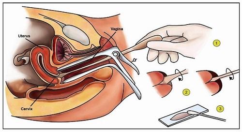 Xét nghiệm PAP được sử dụng nhiều nhất trong tầm soát ung thư cổ tử cung.