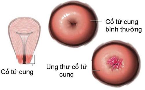 Thuốc chữa ung thư cổ tử cung có những loại nào? Hình ảnh ung thư cổ tử cung.